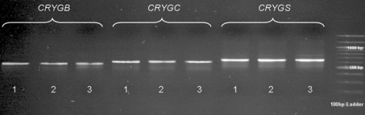 γ-Crystallin cDNA analysis. Bands of cDNA PCR products of the lens tissue of two dogs affected by CAT and an unaffected dog for each gene (CRYGB, 567 bp; CRYGC, 603 bp; and CRYGS, 645 bp) on an agarose gel. In the gel, band 1=mixed breed, unaffected; band 2=dachshund mix, affected; band 3=German shepherd, affected. The cDNAs of the other four dogs did not differ in sequence and product size.