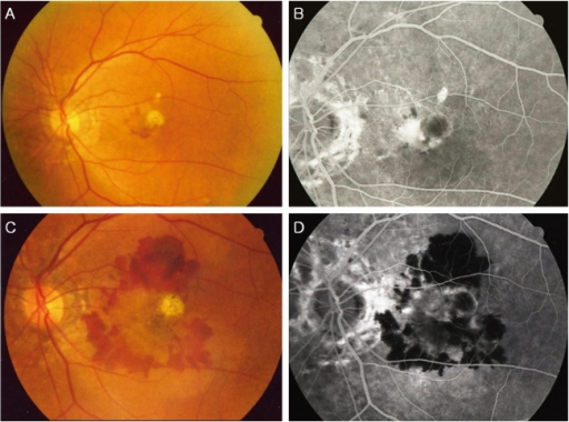 Case 5 : Pretreatment fundus photography (A) and fluorescein angiogram (B) reveals subfoveal choroidal neovascular membrane associated with hemorrhage. Posttreatment fundus photography (C) and fluorescein angiogram (D) at 9 months reveal marked enlargement, increased leakage, and disciform conversion of the neovascular complex
