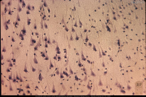The cytoplasm of nerve cells takes the stain poorly and the nuclei are structureless and pyknotic. Glial reaction has not yet begun. (see slide 18). Cresyl violet stain. x310