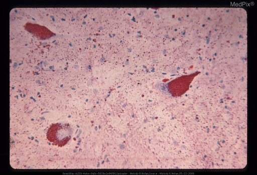 Intracytoplasmic lipochrome granules, which are bright red are much in excess of the normal. Sudan IV stain. x335
