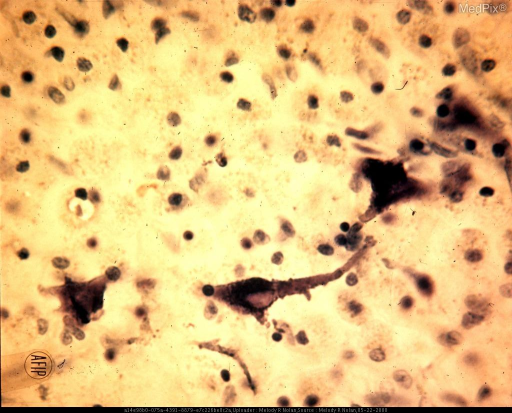 Shrunken remnants of nerve cells are encrusted with calcium and iron salts. Calcification may occur following a catastrophic event, such as cerebral trauma or vascular thrombosis. The necrotic cytoplasm takes up salts from the surrounding plasmatic transudate. Cresyl violet stain. x450