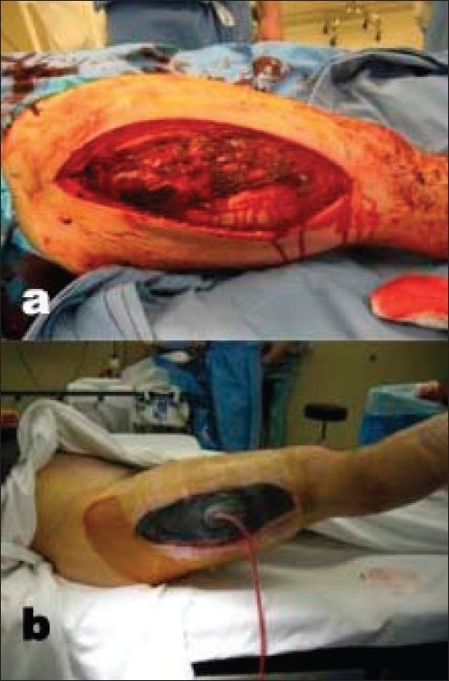 a) Clinical photograph of thigh shows Open wound prior | Open-i