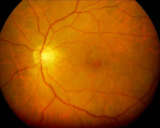 This preoperative fundus photograph shows a partial-thickness macular hole.