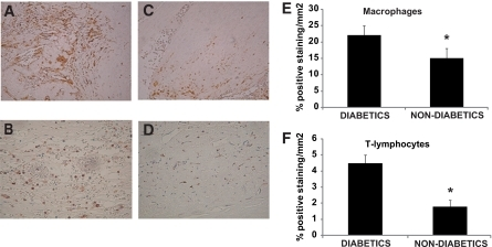 Inflammatory cells in carotid atherosclerotic plaques studied by immunohistochemistry. Consecutive sections were stained for macrophages (A and C) and T-cells (B and D) on the plaque. Marked reductions in the number of positive cells within the intimae were observed in the nondiabetic group vs. the diabetic group both for macrophages (C) and T-cells (D). E: Macrophages. F: T-lymphocytes. *P < 0.05.