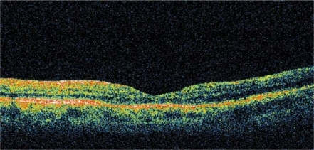 OCT imaging showing macular hole closure after the second surgical procedure and the anatomical restoration of the foveal contour.