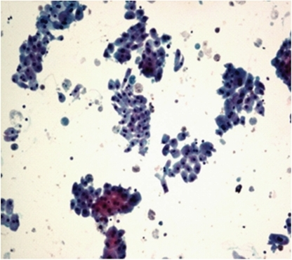 Photomicrograph of apocrine cells with granular cytoplasm and mild anisonucleosis, Pap, 10x. Apocrine cells: granular cytoplasm and mild anisonucleosis.