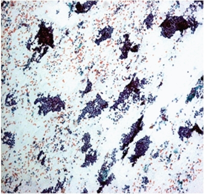 Photomicrograph of hypercellular smear with monolayered sheets of ductal cells in fibroadenoma, Pap, 10x. Fibroadenoma: hypercellular smear with monolayered sheets of ductal cells.