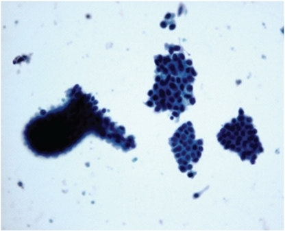 Photomicrograph of cell balls with cytologic atypia in papilloma, Pap, 20x. Papilloma: cell balls with cytologic atypia.