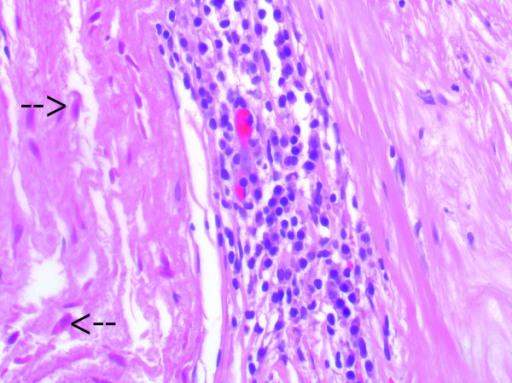 Histological imaging of the donor tissue (left) and host tissue in the stent-adjacent area (right). Non-vital, less basophilic cell remnants can be clearly seen (arrows). Inflammatory cell response is seen between the donor tissue and the fibrous sheath (H&E stain; ×400).