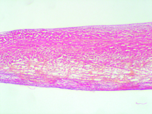 In two valves, fragmentation of the lamina spongiosa is seen, with the absence of corrugations (Weigers stain; ×100)