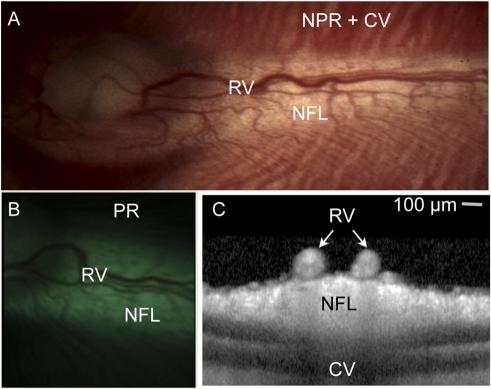 Illustration Of Rabbit Retinal Anatomy In One Represent Open I