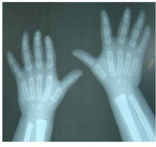 X-ray hands show evidence of osteopenia and uneven fingers.