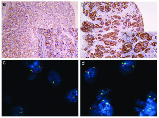 EGFR protein and gene status in clear cell renal cell carcinoma. Immunohistochemical expression of EGFR protein, shown at lower (×10) and higher magnification (×20), was designated as discontinuous or continuous membrane staining of different intensity: (a) weak and moderate (+/++) discontinuous and continuous membrane immunostaining, and (b) strong continuous immunostaining (+++);. (c) chromosome 7 copy number was analyzed in tumor cells using fluorescence in situ hybridization (FISH) with an α-satellite DNA probe for chromosome 7 (centromere 7, green signal; EGFR gene, red signal); tumor nuclei showed disomy of chromosome 7 without EGFR gene amplification (d) tumor nuclei showed polysomy with a greater number of red and green signals than in normal cells; (c and d magnification × 100).