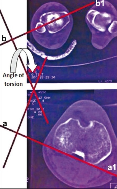 Measurement of tibial torsion using CT scanning. The proximal reference line is a line drawn as tangent to posterior tibial cortex in the cut just proximal to the fibular head (a, a1). The distal reference line is a line that connects the tibial and fibular centers in the cut just proximal to the tibial plafond (b, b1). The torsion angle is the angle between perpendicular lines to two reference lines