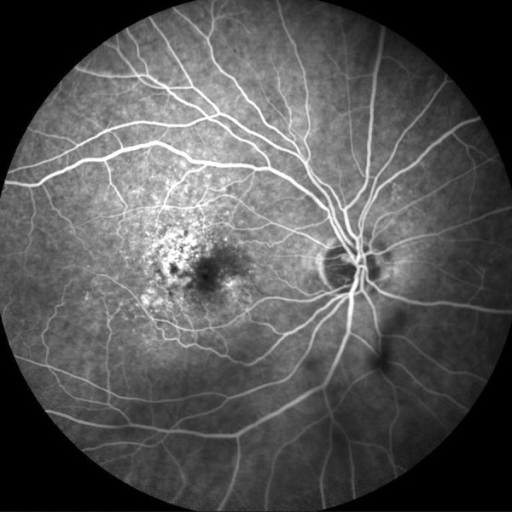 FA before PDT (late phase): at the macula there is ill-defined area of hyperfluorescence that does not correspond to the early phase of the angiography. Occult choroidal neovascularization, type 2.