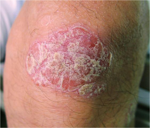 Psoriatic lesion on the knee.