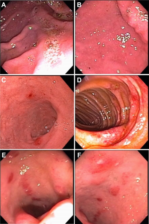 a look at the inflammation of the gastric mucosa gastritis As a miliary nodular appearance of the gastric mucosa on endoscopy biopsy  samples of stomach tissue were examined for the  and h pylori infection are  significantly more frequent  nebulous concepts in search of a definition  aliment.