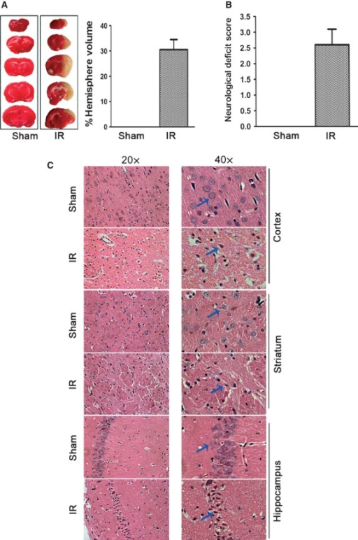 Characterization of brain injuries after focal cerebral ischaemia reperfusion by MCAO. (A) Representative photographs of TTC staining (left panel) and calculated infarct volume showing increased cerebral infarct volume at 24 hrs of reperfusion after MCAO in male Sprague–Dawley rats. (B) Neurological deficit scores in rats after cerebral ischaemia reperfusion. (C) HE staining showed morphological features of injured neurons after ischaemia/reperfusion in different specific brain regions including prefrontal cortex, striatum and hippocampus.