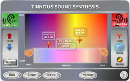 The user interface for Tinnitus sound synthesis.