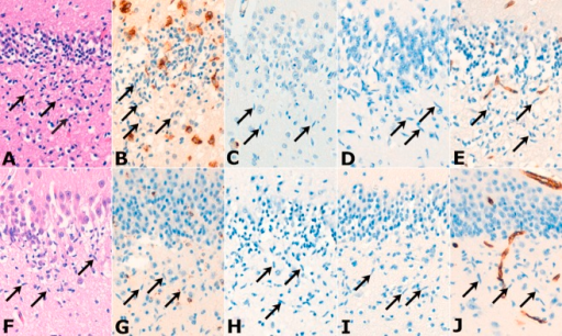 Sections from cases of eSUDI (A–E) and uSUDI (F–J). CD68-positive microglia werepresent in some cases (B and G), but the rod cells (arrows) of the polymorphic layer of the dentategyrus were negative for CD68 and the other microglial markers CD45 (C and H) and HLA-DR (D and I). ACD45-positive circulating lymphocyte is seen within a vessel (C). The endothelial cells, but not therod cells, expressed CD34 (E and J). All images × 20 objective.