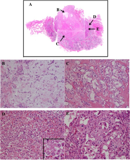 Histological findings of case 1. (A) The tumor showed a hyalinized nodule in the central area and an invasive component around it (whole mount hematoxylin-eosin stained section). (B) Part of the hyalinized nodule (B area in A: hematoxylin-eosin stain: original magnification ×200) showed spindle-shaped neoplastic myoepithelial cells in the myxoid stroma, which showed the typical histology of pleomorphic adenoma. (C) Atypical ductal carcinoma in situ component (C area in A: hematoxylin-eosin stain: original magnification ×200) was observed in the peripheral portion of pleomorphic adenoma. (D) Invasive component (D area in A: hematoxylin-eosin stain: original magnification ×200) showed the diffuse growth of noncoherent, ovoid-shaped, carcinoma cells. (D: inset: hematoxylin-eosin stain: original magnification ×400) Carcinoma cells showed eccentric nuclei, marked cellular atypia and 1 large nucleolus with eosinophilic cytoplasm. (E) Typical histology of salivary duct carcinoma, which consisted of irregular-shaped atypical glands with eosinophilic cytoplasm, relatively large cytoplasm and marked nuclear atypia, was seen at the invasive component (E area in A: hematoxylin-eosin stain: original magnification ×200).