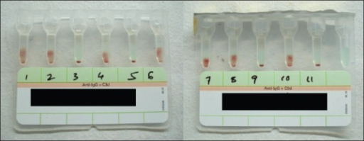 LISS Coomb's gel card showing one to 11-cell panel antibody identification results at 37°C