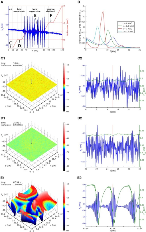 "(A) Imposed concentration of isoflurane (red curve), and the he response (blue curve) at the cortical location indicated by black arrows in the snapshot panels below. Different plateaus of concentration are labeled ""C,"" ""D,"" ""E,"" and ""F."" Arrows point to the central times of the corresponding time series shown below. (B) PSDs of he averaged over the entire grid and normed to unit area for plateaus ""C"" (blue), ""D"" (green), ""E"" (red), and ""F"" (cyan). The motion of the alpha peak to lower frequencies persists qualitatively into the burst suppression phase ""E"" at much increased power. (C1) Snapshot of the he activity of the cortical surface at 0 MAC isoflurane. The size of he is indicated by both height and color, cf. the color bar. A black arrow shows the position from which the corresponding time series were recorded. (C2) Time series of he (blue) and Γee (green) over the 10 s of the ""C"" plateau. Regular alpha rhythms in he and slow Γee oscillations around the standard value Γ0ee can be seen. (D1) Snapshot at 0.5 MAC. (D2) Time series of the ""D"" plateau. The oscillations of he have larger amplitude at a lower average. The slow Γee oscillations now occur at an elevated level. (E1) Snapshot at 1 MAC. Burst suppression patterns have emerged and move across the cortical surface. (E2) Time series of the ""E"" plateau. Burst suppression is apparent both in he and Γee, with a rapid drop in Γee caused by the strongest he oscillations. An animation of this simulation is provided as Movie 1 in the Supplementary Material."