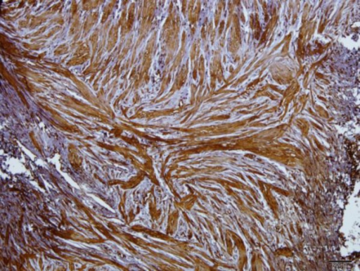 Immunoreaction of smooth muscle cells to caspase 3 antibody in a patient specimen.(intensified 3+) note also to the irregular arrangement of the muscle fibers.(×100)