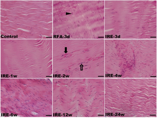H&E staining of the rabbit ATs following sham operation, RFA and IRE ablation in longitudinal section.(RFA-3 d) Coagulative necrosis induced nuclear pyknosis and karyorrhexis (arrow head); (IRE-1 w) complete IRE ablation and removal of tenocytes; (IRE-2 w) regeneration of blood capillaries (black arrow) and tenoblasts (hollow arrow). The scale bars represent 50 μm.