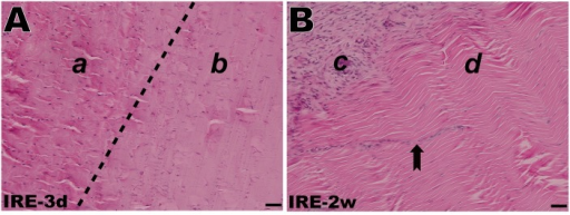 H&E staining of the rabbit AT after IRE ablation.(A) A well-demarcated margin between the non-ablated region (a) and the ablated region (b) 3 days post-IRE. (B) Peripheral paratenon formation and endotenon ingrowth 2 weeks post-IRE. Tenoblasts migrating from the periphery (c) towards the interior (d) in alignment with the collagen fibers (dovetail arrow). The scale bars represent 50 μm.
