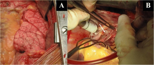 Intraoperatively, marked pulmonary venous congestion of the right lung was found (a). After entering the left atrium, a common drainage of the right pulmonary veins was noted, with an obstructing membrane right before the draining orifice, leaving an opening of only 3 mm (b, arrow)