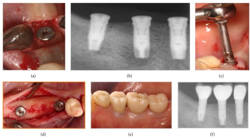 Explantation of dental implant.