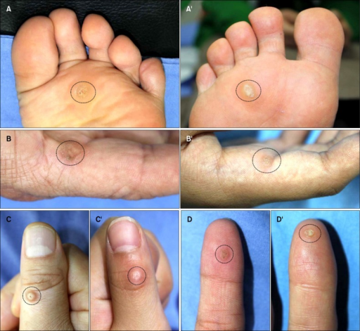 Clinical image of the matched case (A, B, C, D) and control (A', B', C', D') groups (dotted circles: viral wart).