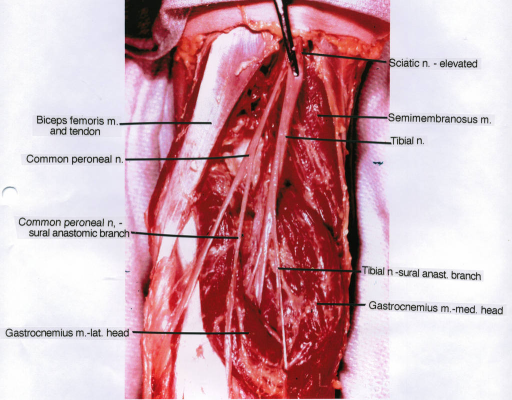 gastrocnemius muscle; tibial nerve; semimembranosus mus | Open-i