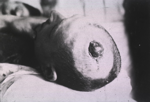 <p>View of an open wound at the top of the patient's head.</p>