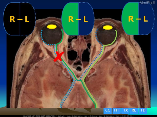 Cutting the optic nerve proximal to the chiasm.