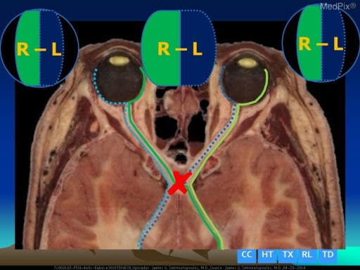 "Cutting the axons where they cross at the chiasm (e.g. pituitary tumors and craniopharyngioma) damages the lateral (temporal) perception - but preserves the medial (nasal) visual fields which do not cross.  This produces a constricted visual field - with both lateral edges (peripheral vision) cut off.  Patient's often describe this as ""tunnel vision""."