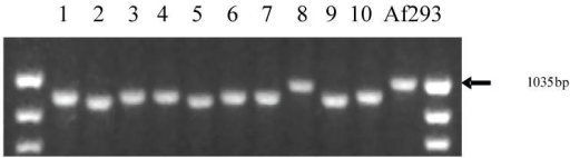 The TR region in A. fumigatus gene Afu3g08990 containing a leader sequence and GPI anchor shows size variability. The TR region of Afu3g08990 was amplified by PCR in 11 clinical A. fumigatus isolates, including the genome-sequenced reference strain Af293. This figure shows size variation of the TR region between the strains.