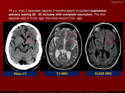 There is an area of reduced attenuation (darker) in the left frontal lobe - just anterior to the Sylvian fissure.  This is in the region of the arcuate fasciculus and may produce an aphasia with non-fluent speech production.  PMID:24131592