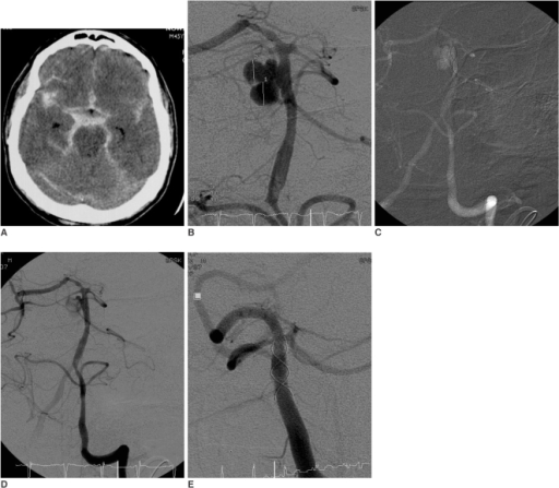 Obliteration of basilar artery aneurysm in 45-year-old man.A. Non-enhanced CT scan reveals massive subarachnoid hemorrhage (Fisher grade IV) with intraventricular hemorrhage.B. Angiogram shows wide-necked, saccular aneurysm on basilar trunk and aplasia of left P1 segment of posterior cerebral artery.C. Angiographic road map displays stent placement.D. Angiogram immediately following stent deployment shows significantly decreased intraaneurysmal flow.E. Follow-up angiogram after one month demonstrates complete occlusion of aneurysm.