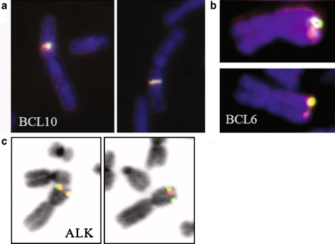 Selection of probes validated in stage 0. a BCL10 localises to chromosomal band 1p22; b BCL6 localises to chromosomal band 3q27; c ALK localises to chromosomal band 2p23. a and b A normal DAPI (DNA) fluorescence staining combined with the FISH probe signal. c An inverted DAPI staining in combination with the FISH probe signal