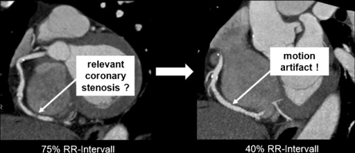 "Curved-planar reformations of the right coronary artery (RCA) at two different reconstruction time-points: At 75% of the R-R interval a noncalcified plaque in the distal RCA is suspected. Reviewing this area at 45% of the R-R interval shows no evidence of plaque, proving the ""lesion"" in diastole to be a motion artefact"