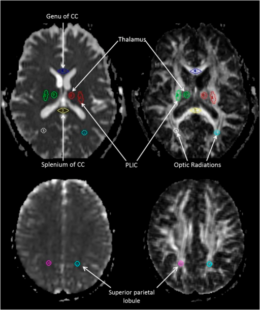 White Matter Lesions Defined By Diffusion Tensor Imaging In Older Adults