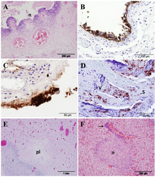 Histopathological changes and immunohistochemical detection of chlamydial antigen in sheep infected with C. abortus.(A) Cross-section of an affected placental membrane at 138 days gestation (dg) from a ewe intranasally administered 5×103 IFU C. abortus (group 1), showing necrosis and sloughing of the chorionic epithelium (n) and inflammation in the underlying mesenchyme (i), HE. (B) Immunohistochemical labelling of C. abortus LPS in the placenta of a control ewe (group 5; subcutaneously infected with 2×106 IFU C. abortus) at 141 dg; note intense labelling (brown colouration) of chlamydial inclusions and antigen in chorionic epithelial cells displaying signs of acute degeneration. (C) Immunohistochemical labelling of placenta sampled at 102 dg from a ewe intranasally administered 5×103 IFU C. abortus (group 1), showing an area of diffuse and granular positive labelling for C. abortus antigen associated with the destruction and loss of the chorionic epithelium. (D) Cross-section through a placentome at 138 dg from a ewe intranasally administered 5×105 IFU C. abortus (group 2), showing the interdigitating caruncular septum (s) and fetal placental villus (v). Note the light inflammation and pockets of positively labelled chlamydial antigen in the septal tissue and the proportionately greater villous labelling along with necrotic changes. (E) Section of fetal forebrain sampled at 138 days gestation from a ewe intranasally administered 5×103 IFU C. abortus (group 1) showing periventricular leucomalacia (pl), HE. (F) Section of fetal liver sampled at 136 days gestation from a ewe intranasally administered 5×105 IFU C. abortus (group 2), HE; note the focal necrosis (n) and periportal inflammation (arrow).