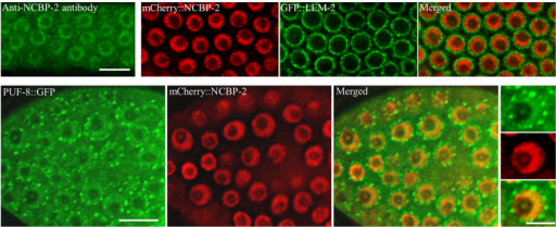 PUF-8 colocalises with the nuclear cap-binding protein NCBP-2. The expression pattern of NCBP-2 as revealed by immunostaining with anti-human CBP20 antibody, the human orthologue of NCBP-2, is shown top left. All other images show the expression patterns of the indicated transgene-expressed fusion proteins. In the bottom row, single nuclei from each panel are shown at higher magnification to the right. Scale bars: 10 μm (top and bottom left); 5 μm (bottom right).