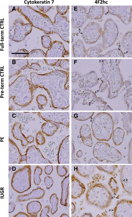 Localization of Cytokeratin and the AAT 4F2hc. Immunohistochemistry staining for Cytokeratin 7 (A-D) and AAT 4F2hc (E-H) in placenta from Full-term control (CTRL) (A,E), Preterm control (B,F), PE (C,G), and IUGR, (D,H) associated placentas. (➢ Arrow denotes syncytiotrophoblast apical MVM (a), basal membrane (b), and cytoplasm (c), or cytotrophoblasts (ct). Size bar in A = 100 μm).