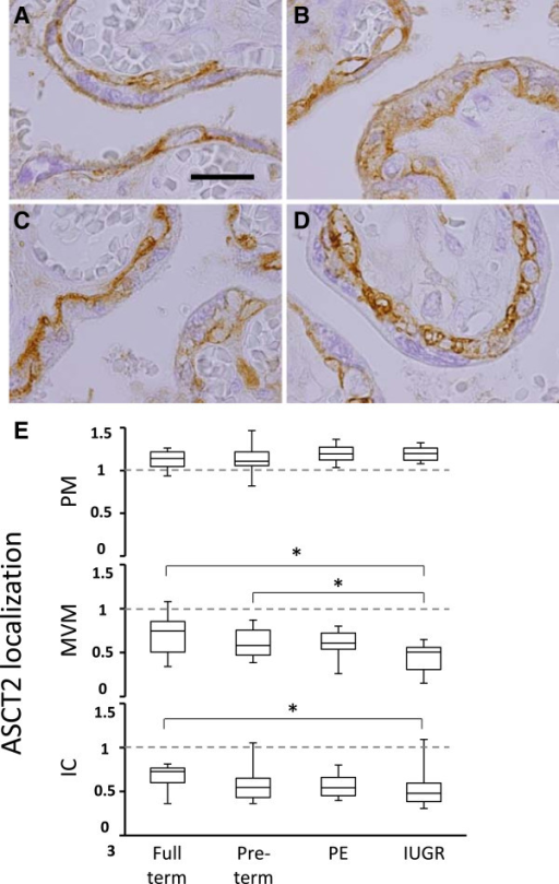 ASCT2 protein localization within the syncytiotrophoblast. ASCT2 protein was detected by immunohistochemistry in the placenta of A, full-term control, B, pre-term control, C, preeclampsia and D, intrauterine growth restriction-associated pregnancies. E, ASCT2 protein expression levels were estimated in the syncytiotrophoblast, including subcellular localization at the plasma membrane (PM), microvillus membrane (MVM), and the intracellular compartment (IC) (* P < 0.05, size bar = 40 mM).
