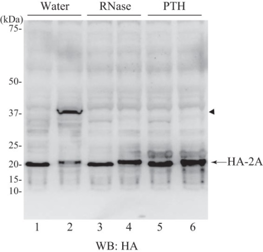 2A is released from tRNA. The HeLa cell extract-derived protein expression system was programmed with pUC-T7-HCV HA-2A-2B-FLAG for lanes 1, 3, and 5 or with pUC-T7-HCV HA-2A(uORF2) for lanes 2, 4, and 6. After translation (10 min), samples were treated with EDTA (19.2 mm) for 5 min at 25 °C and then supplemented with magnesium acetate (22.3 mm). Each sample was subsequently treated with water (lanes 1 and 2), RNase A (0.1 μg/μl) (lanes 3 and 4), or peptidyl-tRNA hydrolase (PTH) (0.42 μg/μl) (lanes 5 and 6) for 30 min at 25 °C and resolved by NuPAGE followed by Western blotting (WB) with anti-HA antibody. The arrowhead indicates the band that disappeared due to RNase or peptidyl-tRNA hydrolase treatment.
