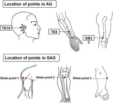 Location of points in AG and SAG.