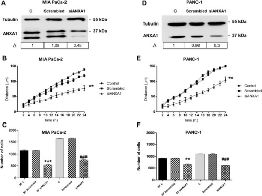 Effects of ANXA1 knockdown on migration and invasiveness rate of MIA PaCa-2 and PANC-1 cells. Western blot using an anti-ANXA1 antibody on protein extracts from MIA PaCa-2 (panel A) or PANC-1 cells (panel D) treated or not with siRNAs direct against ANXA1 (siANXA1). Δ represents ANXA1 fold change normalized to control levels by densitometry. Protein normalization was performed on tubulin levels. B, Results of wound-healing assay on MIA PaCa-2 (panel B) or PANC-1 cells (panel E) transfected with siANXA1s or scrambled siRNAs. Statistical significance was calculated using unpaired t-test between control and ANXA1 knock-down cells, **p < 0.01 vs untreated control. The data are representative of 5 independent experiments ± SEM. Invasiveness rate of MIA PaCa-2 (panel C) or PANC-1 cells (panel F). In invasion assays a total of 90,000 cells were transfected or not with siANXA1s (5nM) or scrambled siRNAs (5nM) for 72 h and plated as described in Methods section. Invasiveness rate was founded out by counting stained cells on the lower surface of the filters. Data represent mean cell counts of 12 separate fields per well ± SEM of 5 experiments. Statistical significance was calculated using unpaired t-test between control and ANXA1 knock-down cells **p < 0.01 vs serum free (SF) control; ***p < 0.001 vs SF control; ###p < 0.001 vs control.